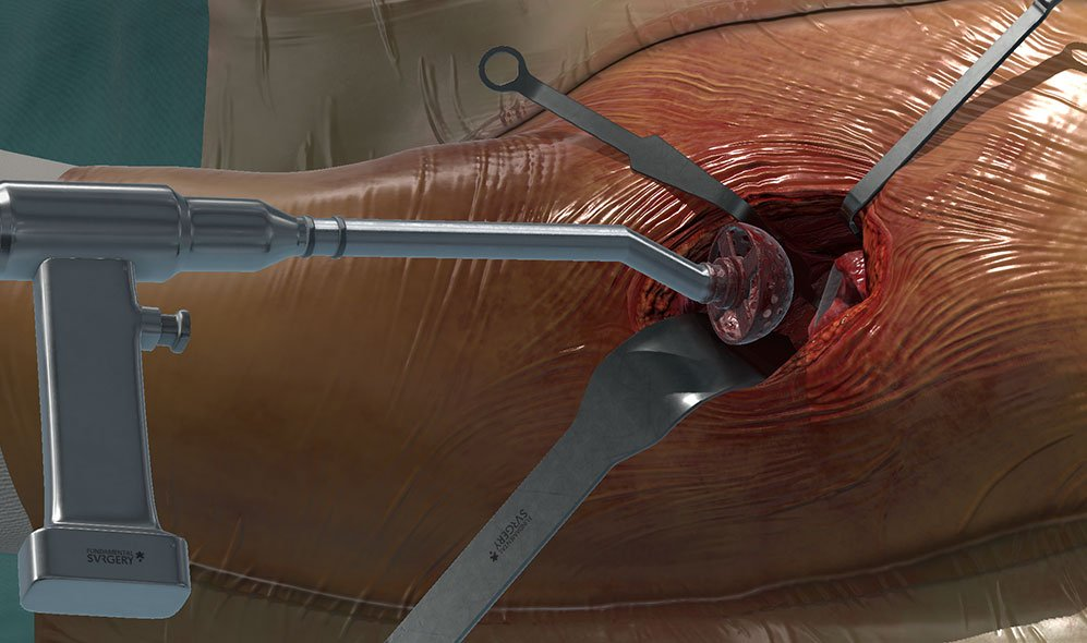 Fundamental Surgery shows the high-quality simulation of the Anterior Total Hip Replacement. This simulation provides an opportunity to safely practice the replacement of a hip joint and provides specific feedback on the accuracy of sawing, reaming and hammering by comparing angles and depths against the ideals for this approach.