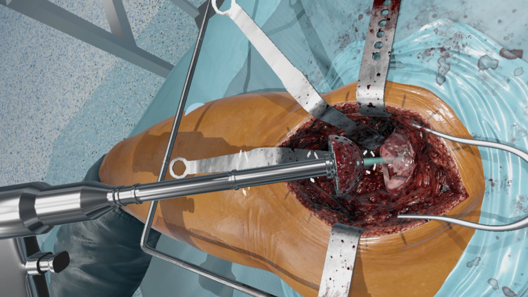 Driving fundamental change in the world of medical training, with virtual reality surgical simulations. Featuring haptic feedback, plus real-time assessment, on compact low-cost hardware https://fundamentalsurgery.com/ #SurgicalVR #trainingdemocracy #wearefundamental