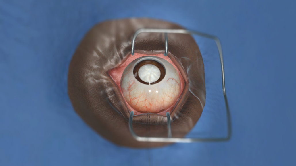 FUNDAMENTALVR EXPANDS INTO OPHTHALMOLOGY